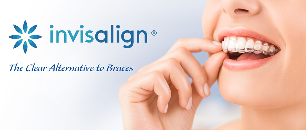 Burlington Invisalign
